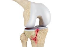 Knee Fracture Care