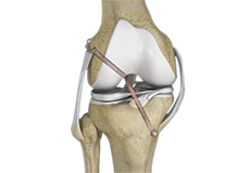 Knee Ligament Reconstruction