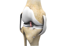Revision Knee Ligament Reconstruction